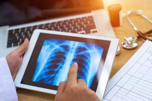 Pulmonologist reviews chest X-Ray